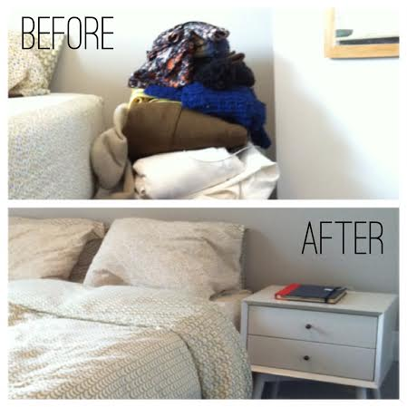 before after bedside